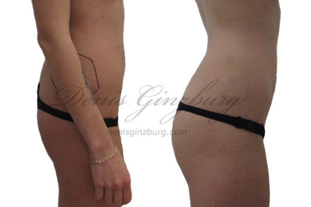 Фото работы пластического хирурга Дениса Гинзбурга. Авторские права защищены. Копирование возможно только после письменного согласия автора